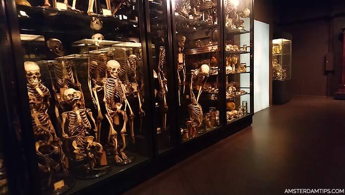 museum vrolik skeleton cabinet