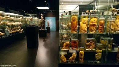 museum vrolik amsterdam